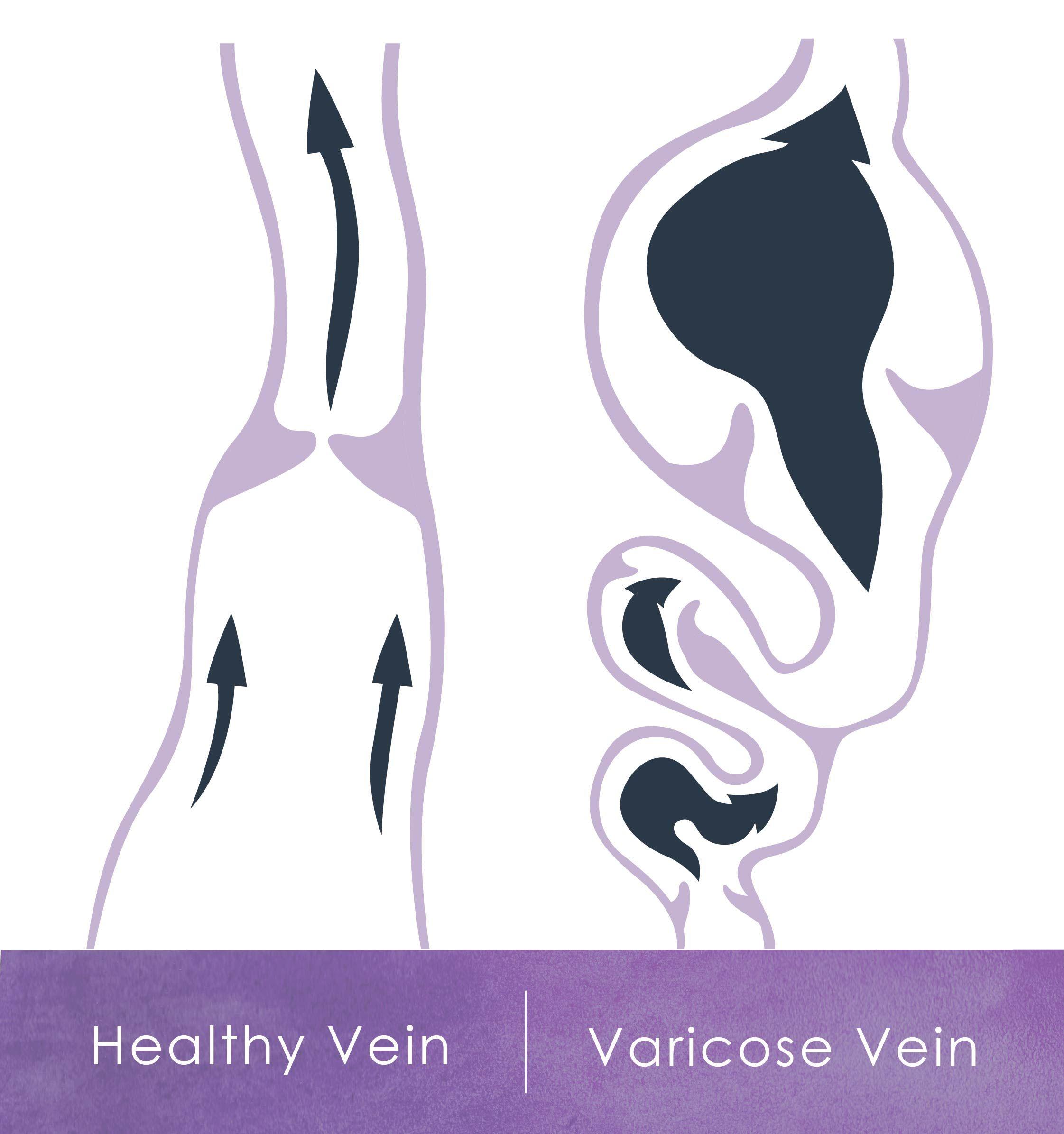 Diagram of healthy vs varicose vein