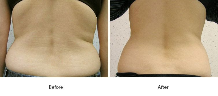 Before and After Cellulite Injections treatment #4