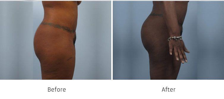 Before and After Brazilian Butt Lift Surgery treatment #1