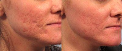 skin resurfacing face