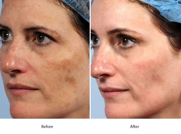 Before and After Fraxel Laser for Skin Resurfacing treatment #4