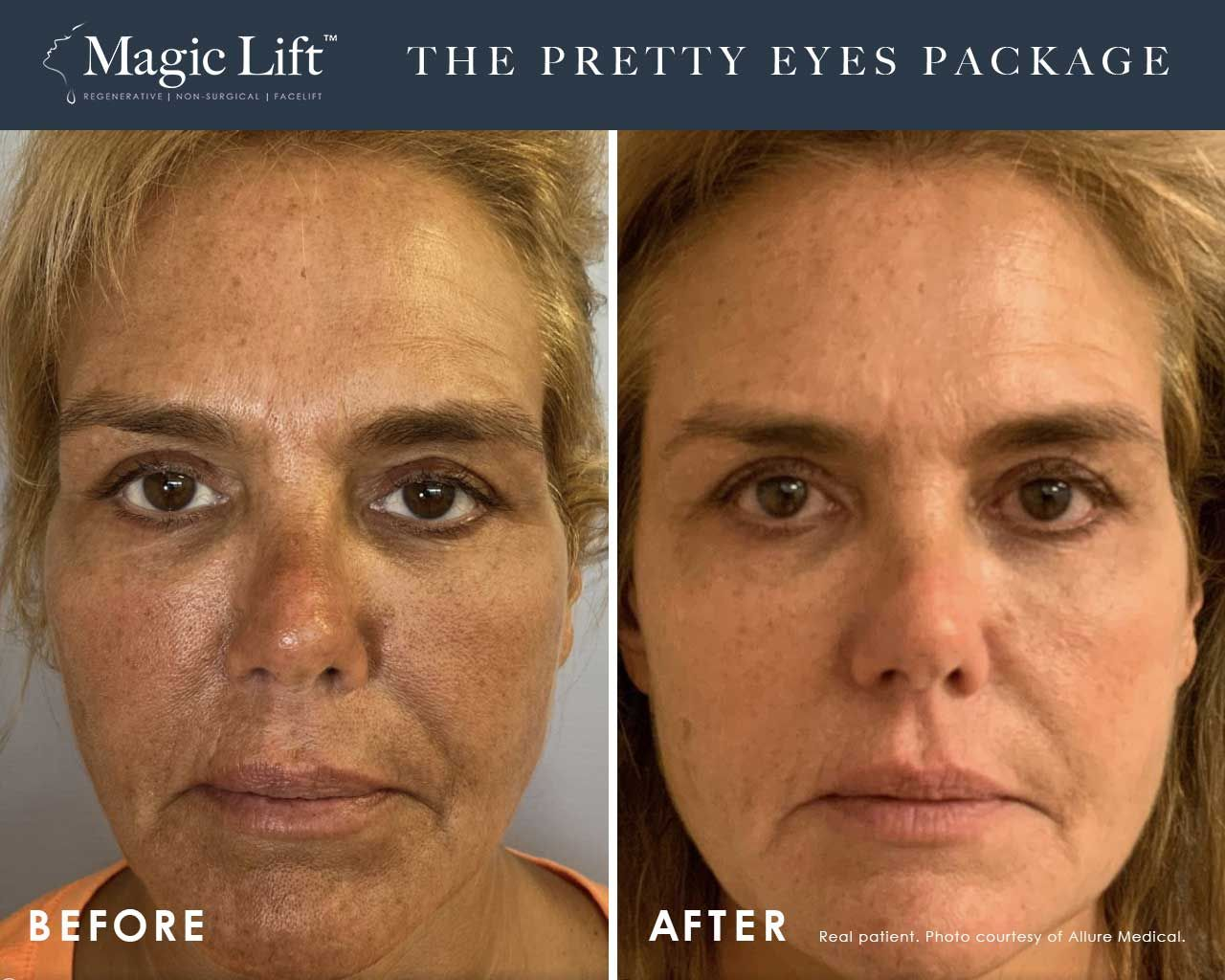Before and After Magic Lift (Non-Surgical Face Lift) treatment #1