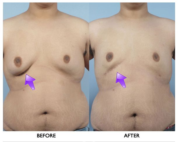 breast-reduction-for-men