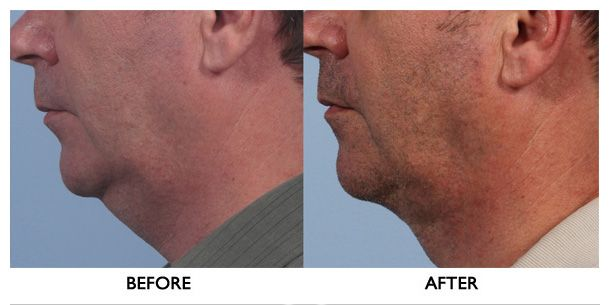 before-and-after-neck