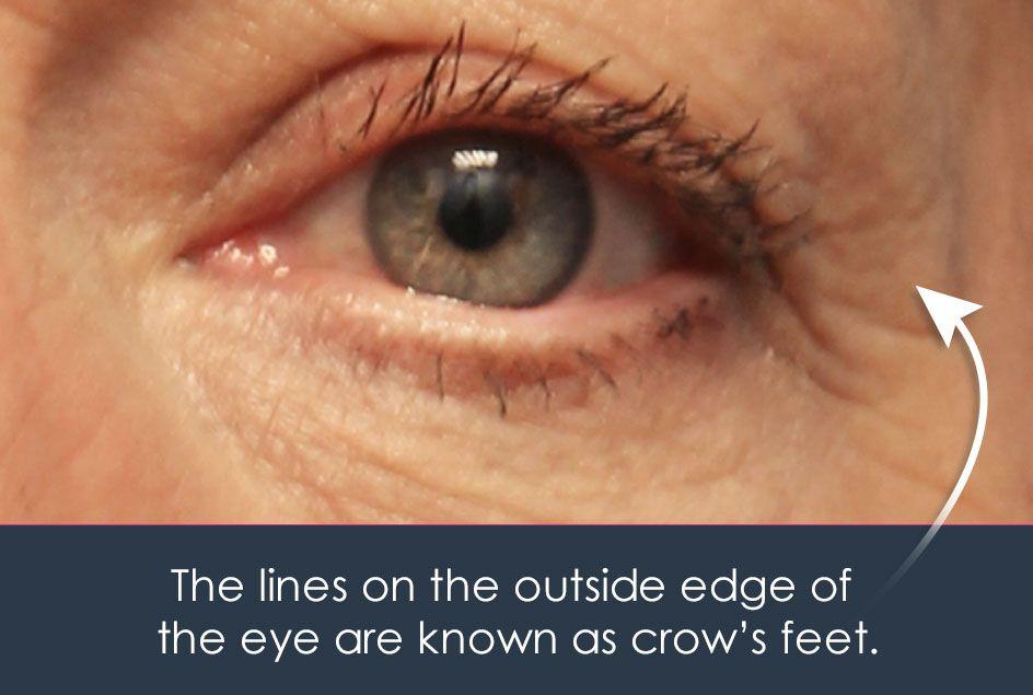 crow's feet around the eyes