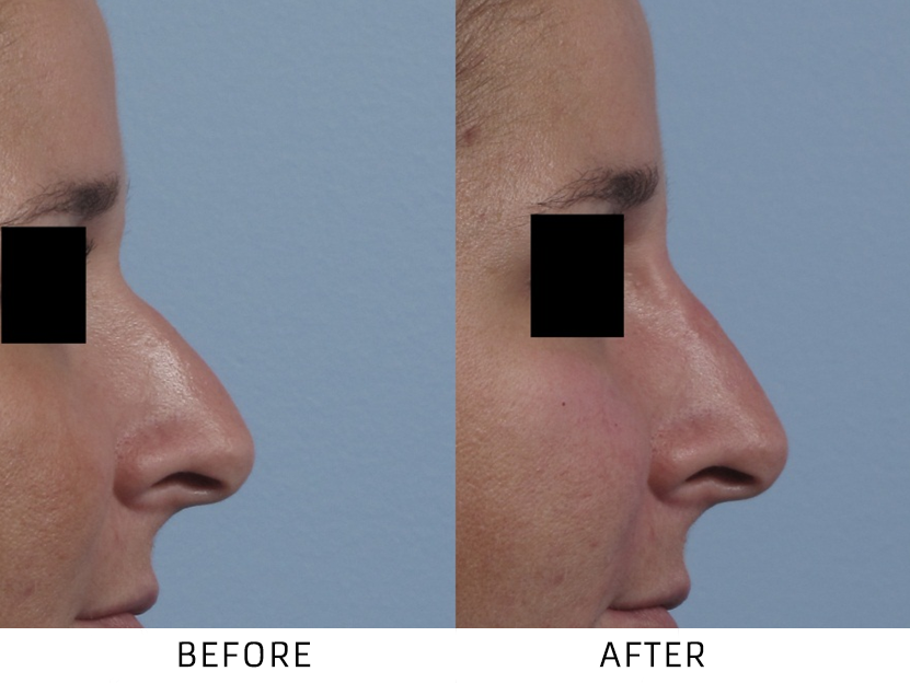 Before and After Non Surgical Nose Job treatment #2