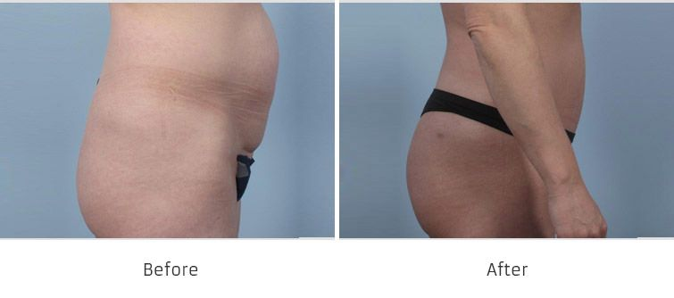 Before and After Fat Transfer Procedures treatment #2